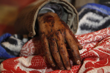 The hand of an injured soldier is pictured as he lies on a stretcher in hospital after military train crash in Badrashin