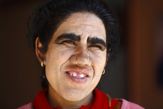 Devi Budhathoki poses for a photograph after undergoing hair removal treatment at Dhulikhel Hospital in Kavre