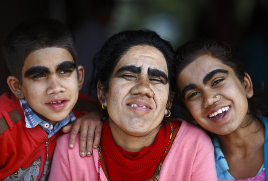 Budhathoki and her children pose for a photograph after undergoing hair removal treatment at Dhulikhel Hospital in Kavre