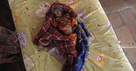 Vishakha, who suffers from severe malnutrition, rests on a bed at the Nutritional Rehabilitation Centre of Shivpuri district