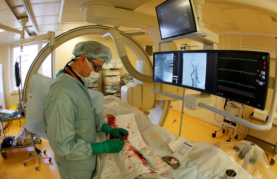 Medical team perform surgery on patient with blood clot in carotid artery at Federal Center of Cardiovascular Surgery in Krasnoyarsk