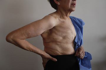 """A breast cancer survivor poses for a photograph at the """"Reto"""" Group for Full Recovery of Breast Cancer in Mexico City"""