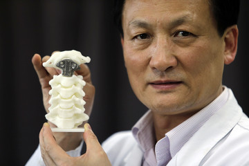 Chinese doctor Liu Zhongjun poses for pictures with a spine model implanted with a 3D-printed artificial axis, at Peking University Third Hospital in Beijing