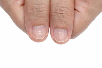 White spots and Vertical ridges on the fingernails symptoms deficiency vitamins