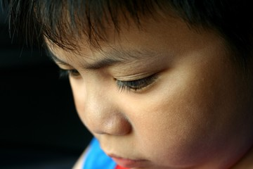Close up photo of a young kid's face with sun burn