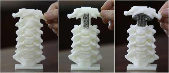 Combination picture of a spine model, a spine model implanted with a traditionally used titanium tube and a spine model implanted with a 3D printed artificial axis, are seen at Peking University Third Hospital in Beijing