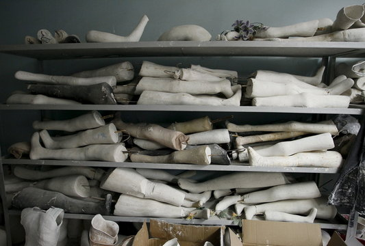 Plaster of Paris moulds of legs are stored at the Orthopedic Center in Donetsk