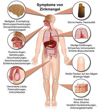 Symptome von Zinkmangel