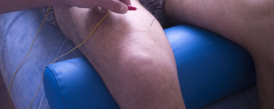 Physical therapy acupunture