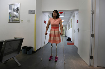 Qian Hongyan, 18, prepares for her new prosthesis at China Rehabilitation Centre in Beijing