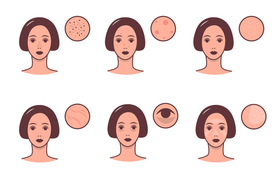 Set of female faces with various skin conditions and problem. Skincare and dermatology concept. Vector colorful illustration.
