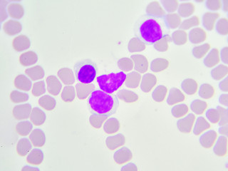 White blood cells in in blood smear, analyze by microscope
