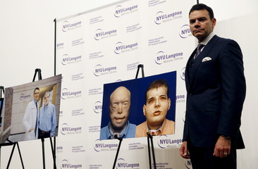 Dr. Eduardo D. Rodriguez poses for photographs at a news conference to announce successful face transplant operation at NYU Langone Medical Center in New York