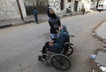 Al-Habash Palestinian girl who lost her legs  listens to a relative in front of her house in Gaza City