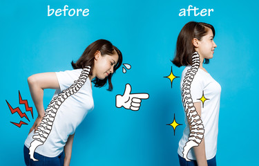 Good posture and bad posture, woman's body silhouette and backbone, chiropractic before after concept.