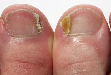 Fungal Nail Infection  on big toes