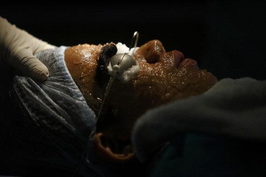 Niraj Budhathoki lies on a hospital bed as a nurse prepares him for laser hair removal treatment at Dhulikhel Hospital in Kavre