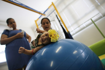 The Wider Image: Twins - one with microcephaly