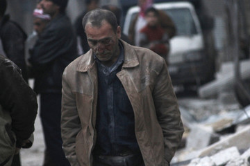 An injured civilian walks at a site hit by what activists said was shelling by government forces in Aleppo's al-Jazmati district