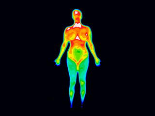 Thermographic image of front of the whole body of a woman with photo showing different temperatures in range of colors from blue showing cold to red showing hot which can indicate joint inflammation.