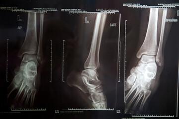 Xray image of human leg