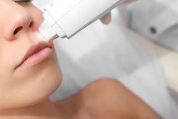 Woman getting laser treatment on her face in a beauty salon, close up