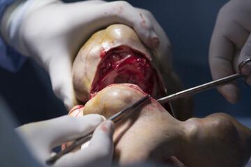 Diseased limb abscission close up