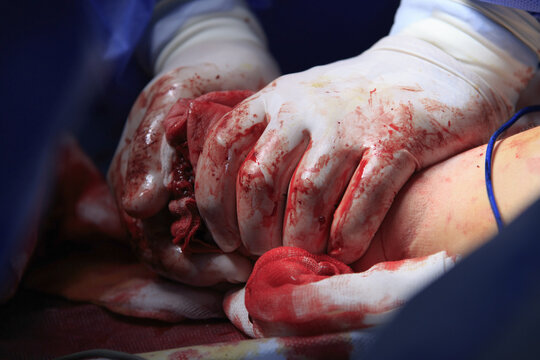 Surgeon hands in bloodstained gloves presses the stump after amputation to stop bleeding close up