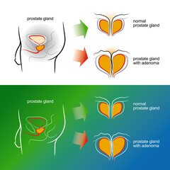 Sketch of a male prostate gland with adenoma. Vector illustration