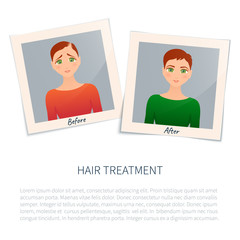 Vector illustration of two photographs of a woman before and after hair treatment and transplantation. Female alopecia stages design template with place for text. Medical concept.