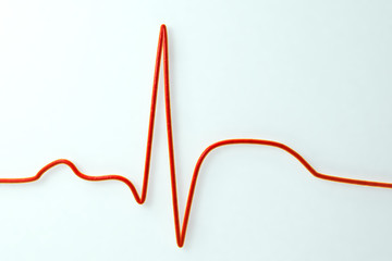 ECG in myocardial infarction. 3D illustration showing ST elevation, non-labeled image