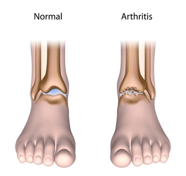 Arthritis of the ankle joint