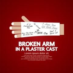 Broken Arm in a Plaster Cast Vector Illustration