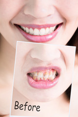 tooth whiten concept