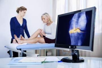 X-ray of a knee arthrosis