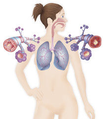 Depiction of a healthy bronchial tube (left) and a bronchial tube during an asthma attack (right)
