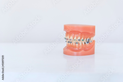 Outstanding Artificial Model Of Human Jaw With Wire Colorful Braces Attached Wiring 101 Orsalhahutechinfo