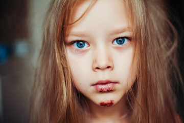 Cute little girl with blood wound on her face.