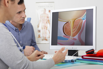 Models On screen, drawing illustrating the prostate (without pathology)