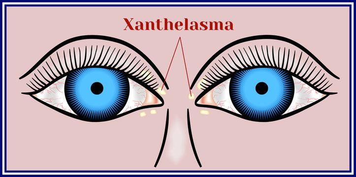 Xanthelasma. Flattened benign neoplasm.