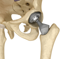 Hip replacement implant installed in the pelvis bone. Medically accurate 3D illustration