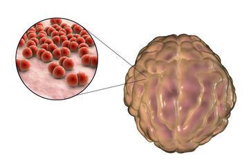 Meningitis infection caused by bacteria Streptococcus pneumoniae