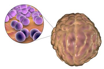 Meningitis infection caused by bacteria Neisseria meningitidis