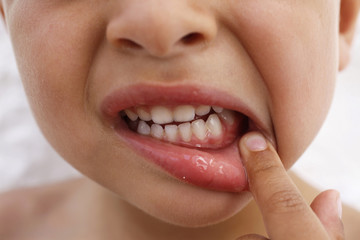 PAINFUL TOOTH IN A CHILD