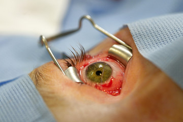 STRABISMUS, SURGERY