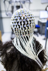 Close-up of patient's head covered with electrodes of EEG