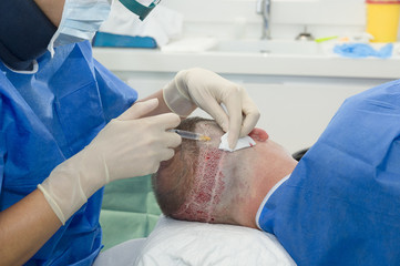 Surgeon doing hair transplantation in hospital
