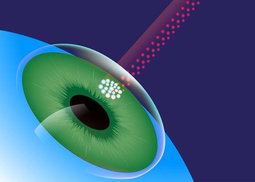 LASIK, Eye Center, Laser Eye Surgery