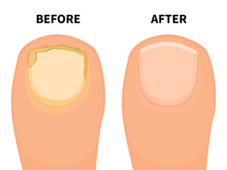Vector toe nail before and after fungal disease Wall mural