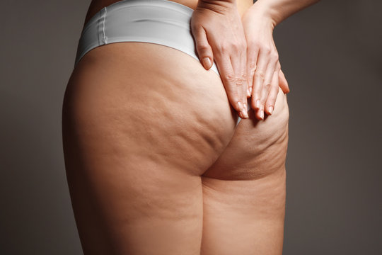 Woman with cellulite problem on dark background